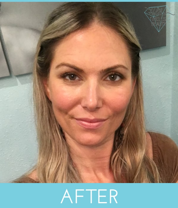 microneedling-san-diego-california-med-spa-after