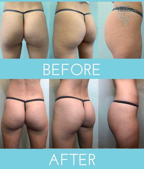 buttocks-before-after